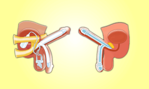 Types of penile implants
